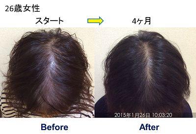 26歳女性発毛症例 お若い女性でも薄毛に悩まれている方が増えています。 そのような方でも正しいケアで自分の髪の毛が生えます。 26歳女性より発毛の乾燥です☟ 【発毛を実感したのは?】 最初は本当に生えるのか心配でしたが、通ったり、自分で頭皮ケアをしていくうちに生えてきたと感じる事がありました。お風呂上りに鏡を見ると髪のボリュームが以前よりもあったり、周りからも「生えてきた」と言ってもらえるようになりました。帽子で髪を隠して外出することが多かった私ですが、今では気にせず外出が出来ています。  【薄毛や抜け毛・AGAに悩んでいる方へ一言】 髪は一生もの!自分でケアしたり、スカルプさんに通えば、ずっと悩んでいたことも解消されます!本当におすすめです。  詳しくはブログをご覧下さい。byスーパースカルプ発毛センター六本木駅前店 .