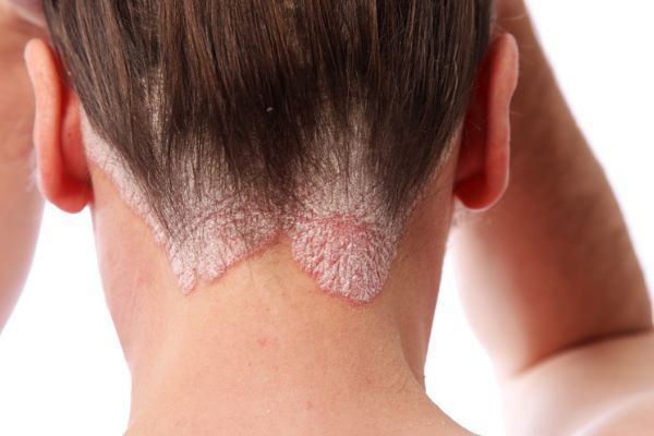 Scalp psoriasis is a very annoying and embarrassing skin disorder, characterized by itchy, flaky, silvery, scaly, dry and red patches on scalp. Though the exact ...
