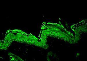 Anti-HSP90 beta Antibody | SPC-177D - StressMarq