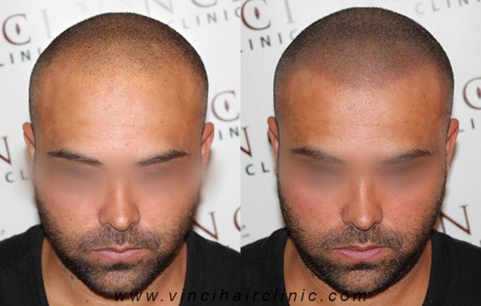 Vinci Hair Clinic is proud to feature a wide range of our Scalp Micropigmentation client results. All of our SMP photos are clients from our clinics around the world. #hairloss #vincihair #SMP #MSP #scalppigmentation #pigmentation #micropigmentation #hair