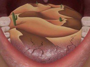 Xerostomía o sequedad de boca,  #boca  #boca seca #falta de hidratación  #fármacos #glándulas salivares #hidratación #Maquina perfecta  #mucosa de la boca  #poca salivación #saliva #salivación #secreción salival #sequedad de boca #xerostomia