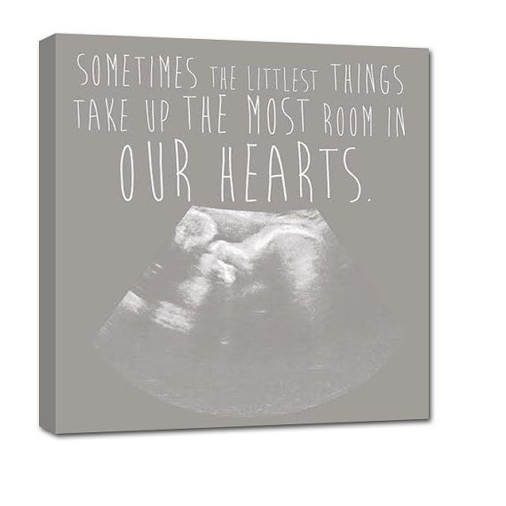 328 best gift idea for dad images on pinterest baby gifts gifts baby gift new mom gift idea for baby shower your ultrasound sonogram image as canvas by negle Choice Image