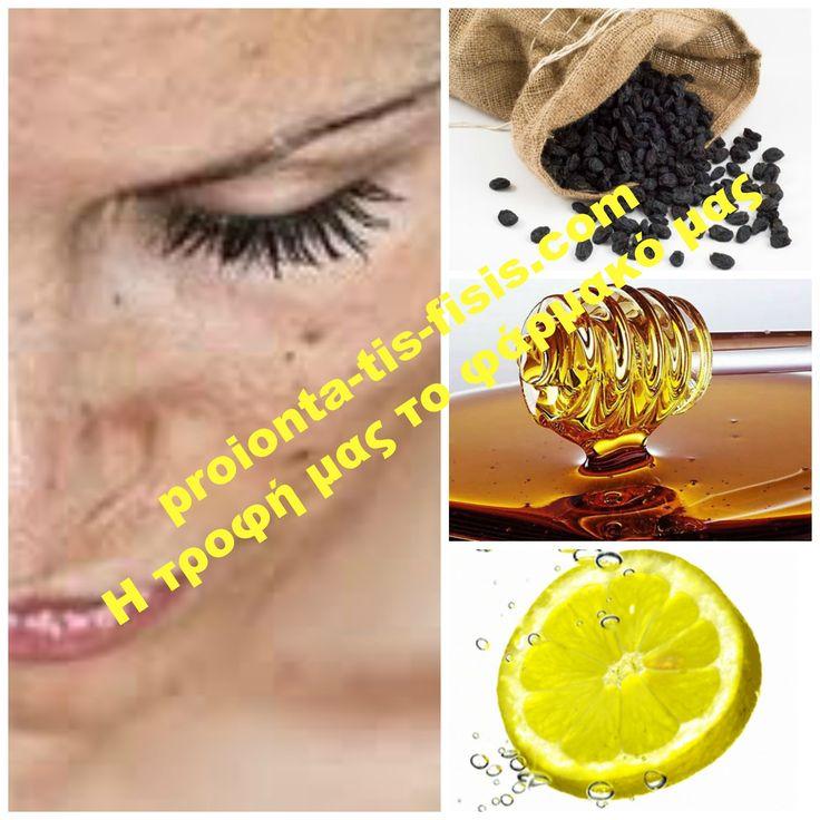 Πώς οι σταφίδες, το λεμόνι και το μέλι θα… εξαφανίσουν τις πανάδες σας! Οι σπιτικές συνταγές μπορούν να κάνουν θαύματα. Δοκιμάστε αυτή τη θεραπευτική μάσκα