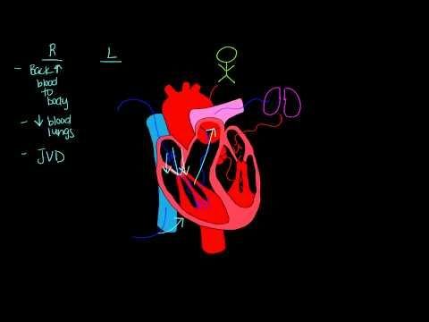 ▶ Left sided vs. Right sided heart failure - YouTube