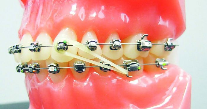 17 Best Images About Braces Pictures On Pinterest