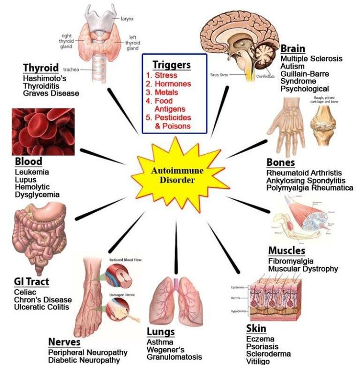 56 best body parts affected by autoimmune diseases images on, Muscles