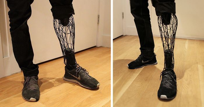 Who says prostheses have to be expensive? Well, surely not William Root - the creator of the Exo Prosthetic leg.