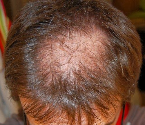mens #hair system will solve this problem  www.hairandwigs.com