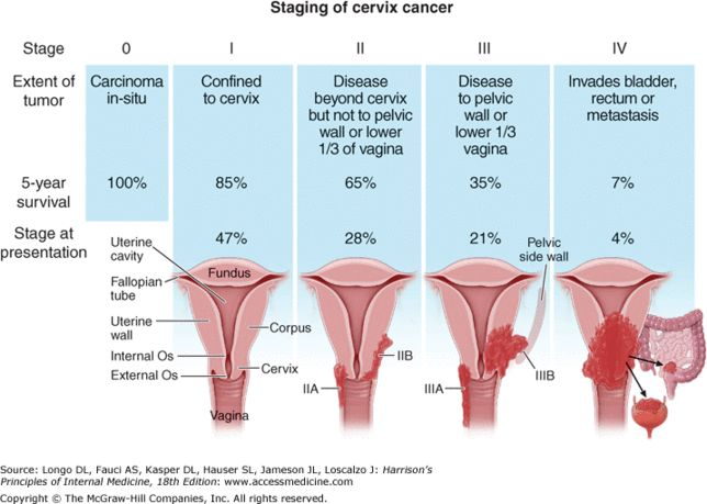Cervical Cancer | fourstar1cervical cancer - Stages of Cervical Cancer