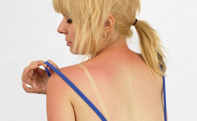 Solução caseira para queimadura solar 1