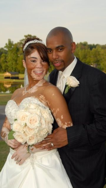Whose Wedding Picture Went Viral Is Proof Beauty Isn T Just Skin Deep Photo