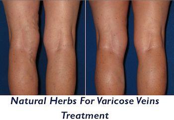 Natural Remidies for varicose vein treatment  -  http://positivemed.com/2013/03/21/natural-herbs-for-varicose-veins-treatment/