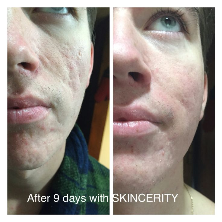 accutane cost with insurance 2014