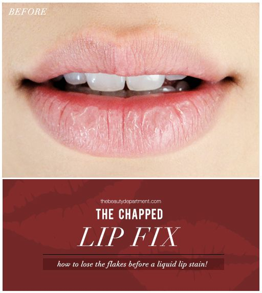 CHAPPED LIP QUICK FIX | Desks Makeup And Lips