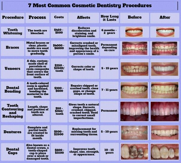 7 Common Cosmetic Dentistry Procedures.  All these procedures can be achieved! Call Smiles by Payet