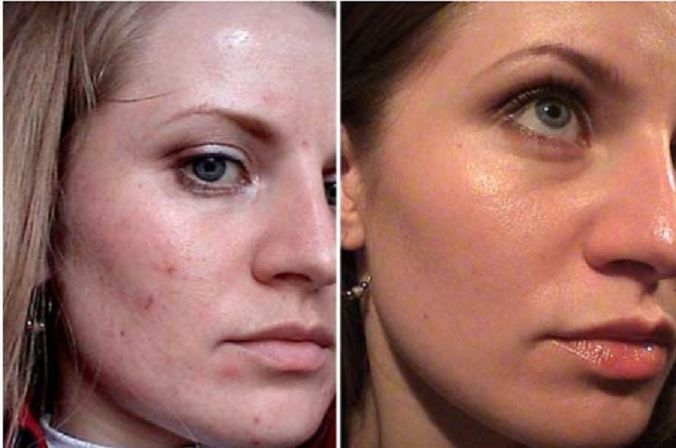 Пилинг гликолевой кислотой предполагает использование препарата под названием гликолевая кислота, которая, соприкасаясь с кожей, начинает воздействовать на клетки верхнего слоя эпидермиса