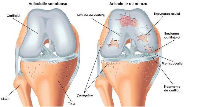 terapie de tratament cu artroză