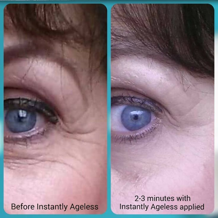 This is me...before and after Instantly Ageless Just love it! www.vivre121.jeunesseglobal.com