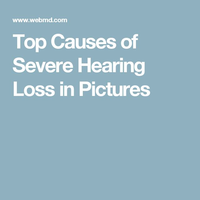 Top Causes of Severe Hearing Loss in Pictures