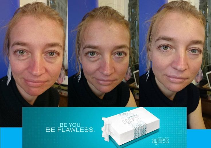 Instantly Ageless works at any age!