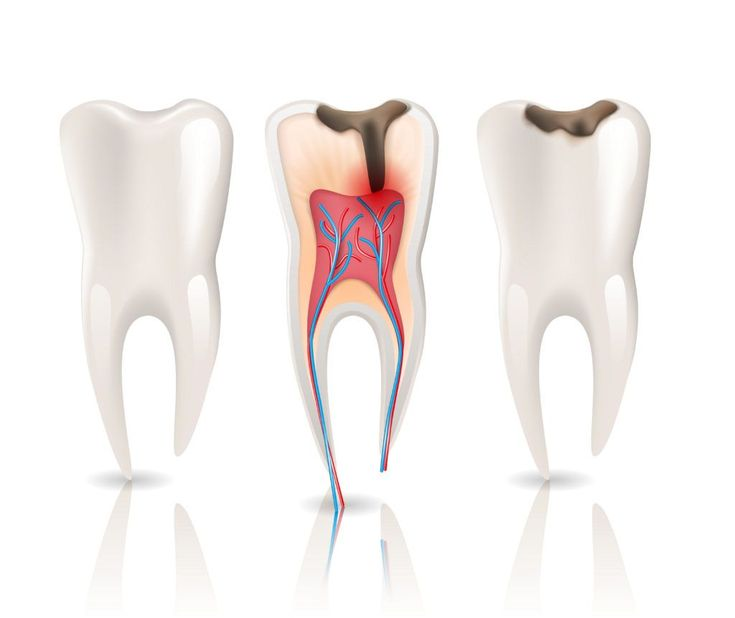 How long to leave gauze in after wisdom tooth extraction