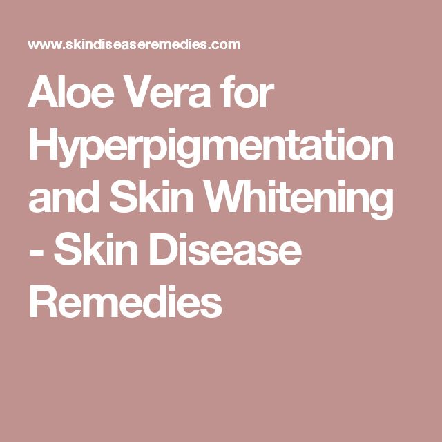 Aloe Vera for Hyperpigmentation and Skin Whitening - Skin Disease Remedies