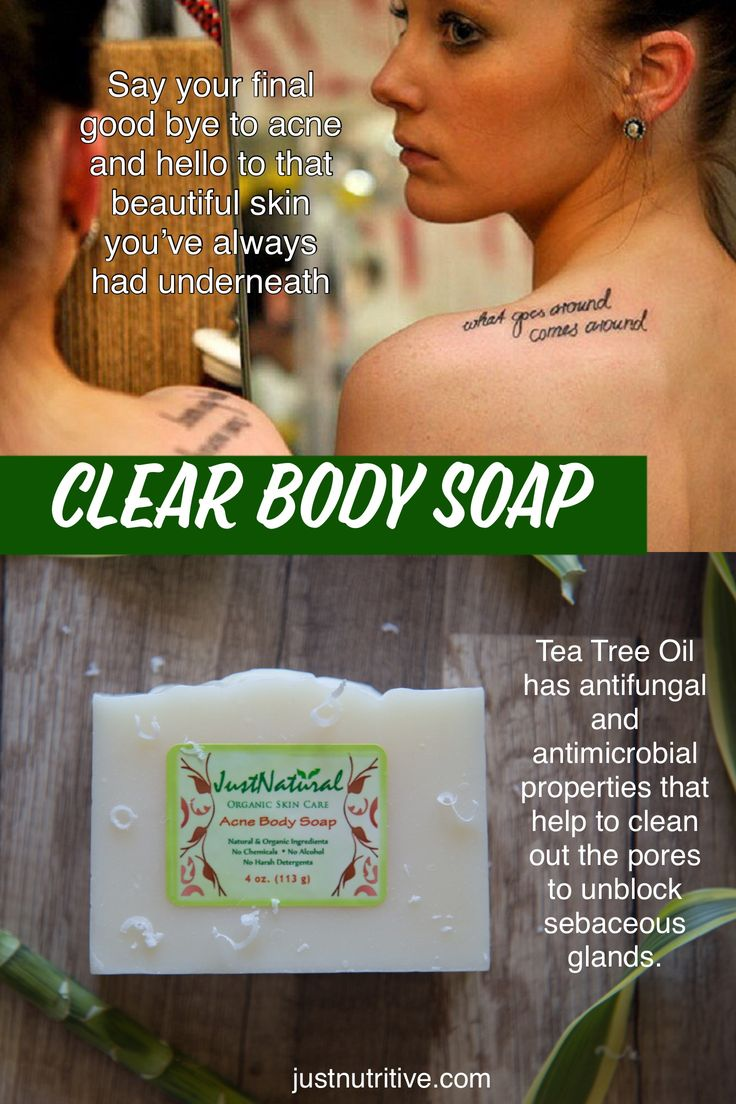 I don't like medication. I found this acne body soap in a magazine and the article was talking about the benefits of getting away from harsh chemicals. I have been using this soap for six months now and have been acne free since. Just like the magazine said, chemicals that are harsh may cause my skin to break out more often.