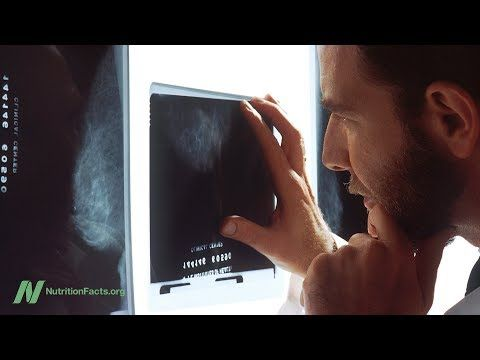 Consequences of False-Positive Mammogram Results | NutritionFacts.org
