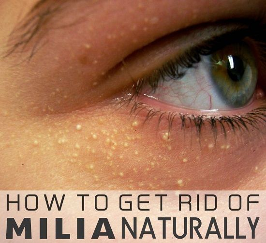 Natural Remedies For Milia Under Eyes
