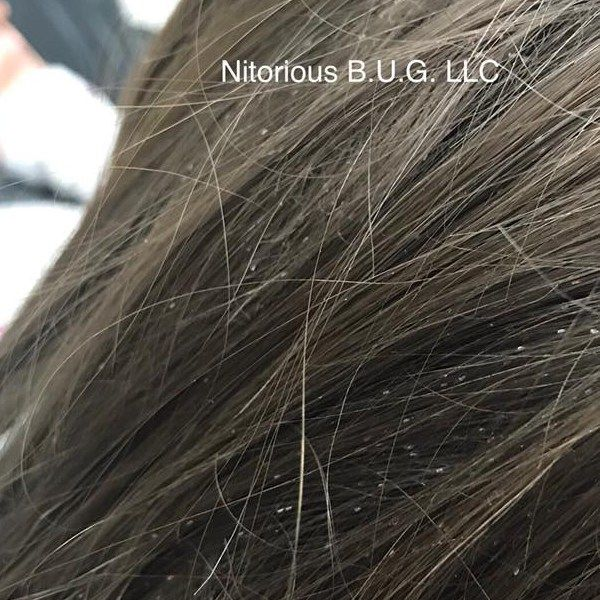 Does Your Client Have Lice This Is What To Do Behindthechair Com Hair Nits Long Hair Styles Louse