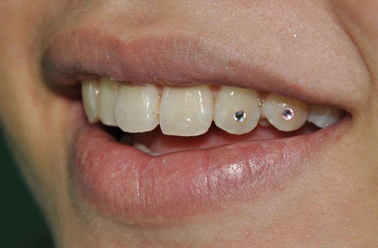 Diamond Tooth Implant Dental jewellery