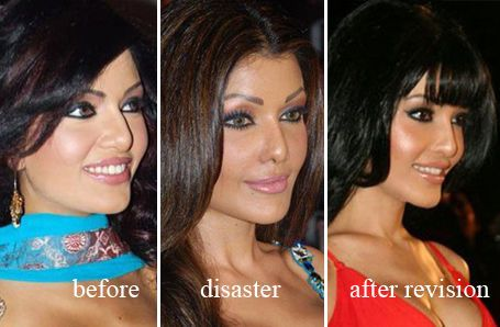 Koena Mitra revision rhinoplasty / Rhinoplasty / Celebrity Plastic Surgery Pics.COM - Bad, good, awful Celebrity Plastic Surgery before and after pictures of rhinoplasty (nose jobs), breast augmentation, breast implants, breast enlargement, face lift, chi