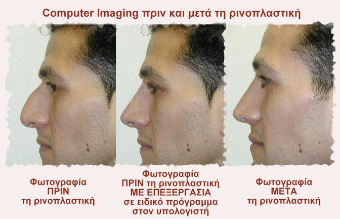 Η επιθυμία να δει κάποιος «πως θα είναι η μύτη του μετά από μια πλαστική μύτης» πριν μπει στην χειρουργική αίθουσα, οδήγησε στο Computer Imaging, δηλαδή στη δημιουργία τεχνολογικού εξοπλισμού και προγραμμάτων ηλεκτρονικών υπολογιστών γι' αυτό το σκοπό. Η εξέλιξη στον ηλεκτρονικό υπολογιστή των προγραμμάτων που αφορούν στην προσομοίωση του τελικού αποτελέσματος, ήταν ένα μεγάλο βήμα στον τομέα της ρινοπλαστικής.