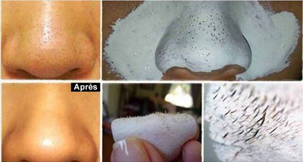 Voici comment vous débarrasser des points noirs et resserrer vos pores naturellement