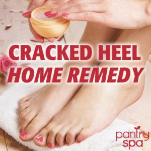 Dr Oz: Dry Cracked Feet Home Remedy - Pantry Spa