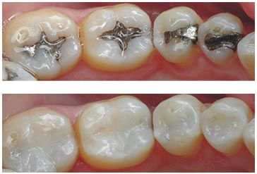 Tooth colored fillings can release Fluoride, keeping teeth healthy from the inside out, wear (not corrode), and bond to itself, so if a part, on x-ray, shows new decay, only that part of the filling needs to be removed, cleaned, and refilled.