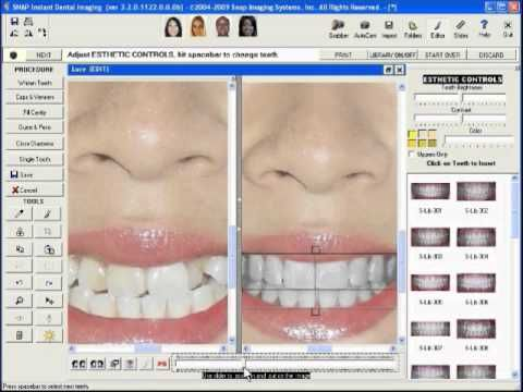 Virtual Smile Makeover at Dr. Kathuria's Multispeciality Dental Clinic #SmileMakeover #DelhiDental #VirtualSmileMakeover