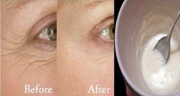IT REALLY WORKS: Get Rid of Wrinkles with Only 3 Ingredients! - http://healthywomensblog.com/it-really-works-get-rid-of-wrinkles-with-only-3-ingredients.html