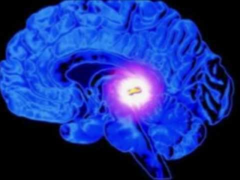 Estudos científicos têm demonstrado que pacientes portadores de alzheimer possuem a glândula pineal calcificada, em especial pelo consumo de flúor (fluoretos). Estudos científicos têm demonstrado, através de tomografia computorizada, que pacientes com alzheimer possuem uma significante quantidade de tecido da glândula pineal calcificado. Pessoas com outras enfermidades, tais como depressão e outros tipos de demência, …