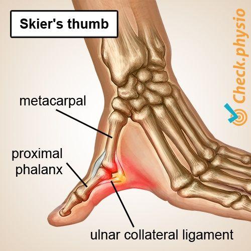 skier\u0027s thumb physio check anatomy hand injuries, yoga anatomy Strained Ligament in Thumb