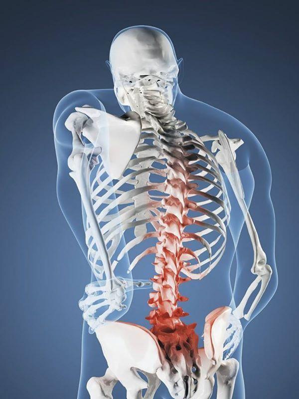 Зажатые нервные корешки - Бизнес… и ничего личного?     Если вас беспокоят боли в области спины — не торопитесь идти на КТ , МРТ , п...