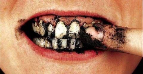Evde diş beyazlatmak bu yollarla çok kolay…