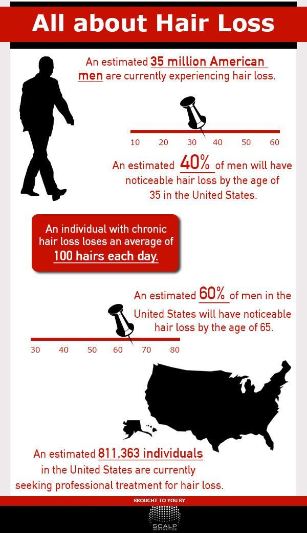 about hair loss infographic - Provillus hair loss treatment for thinning hair or hair loss. Provillus is proven to cure alopecia areata also male and female pattern baldness. http://www.provillushairlosscures.com