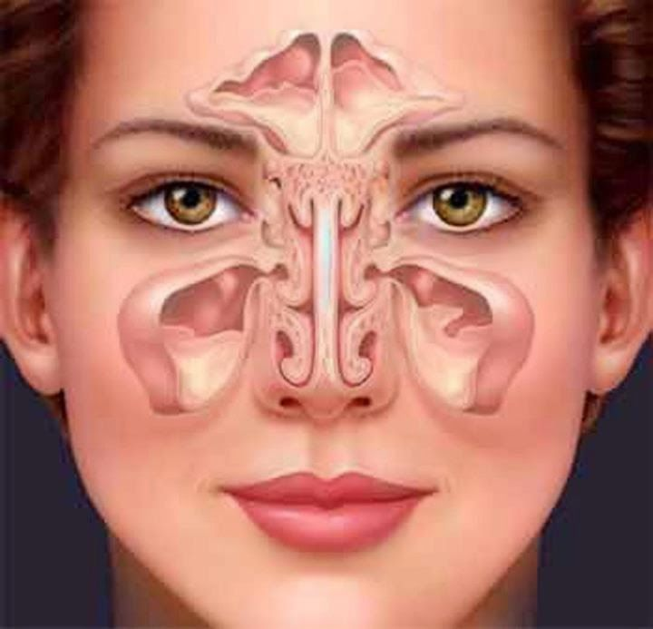 Os Meus Remédios Caseiros: Remédios caseiros para curar a sinusite