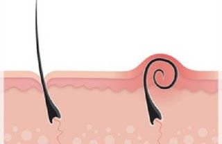 Les poils incarnés sont inesthétiques et font mal parfois, heureusement il existe des astuces naturelles simples et efficaces pour éviter et traiter les poils incarnés naturellement