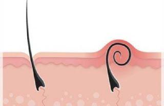 La beauté naturelle: Dites adieu aux poils incarnés grâce à cette recette de grand-mère