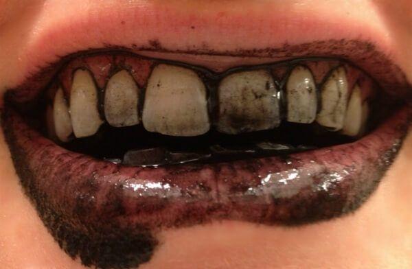 Oto wybielająca pasta do zębów w węglem aktywny. Robi się ją bardzo prosto i zawiera tylko 3 składniki, dzięki którym zęby będą białe i