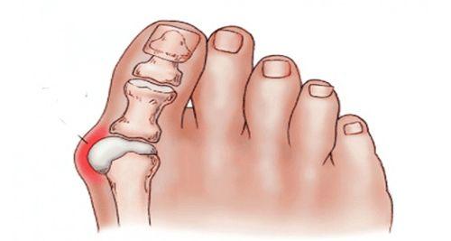 Τα κότσια είναι μη φυσιολογικά εξογκώματα που δεν είναι μόνο αντιαισθητικά αλλά μπορεί να γίνουν και οδυνηρά, αν δεν αντιμετωπιστούν κατάλληλα. Οφείλονται στην άνιση κατανομή του βάρους του σώματος στα πόδια, κάτι που κάνει τα οστά στα δάχτυλα των ποδιών να παρουσιάζουν φλεγμονή και παράλληλα παραμορφώνει την άρθρωση. Συνήθως εμφανίζονται μετά την ηλικία των 30 …