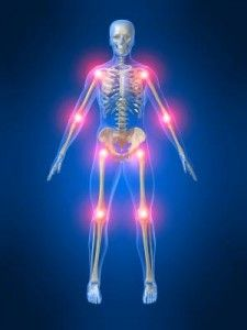 What is Ankylosing spondylitis? Repin from Tammy Morin.