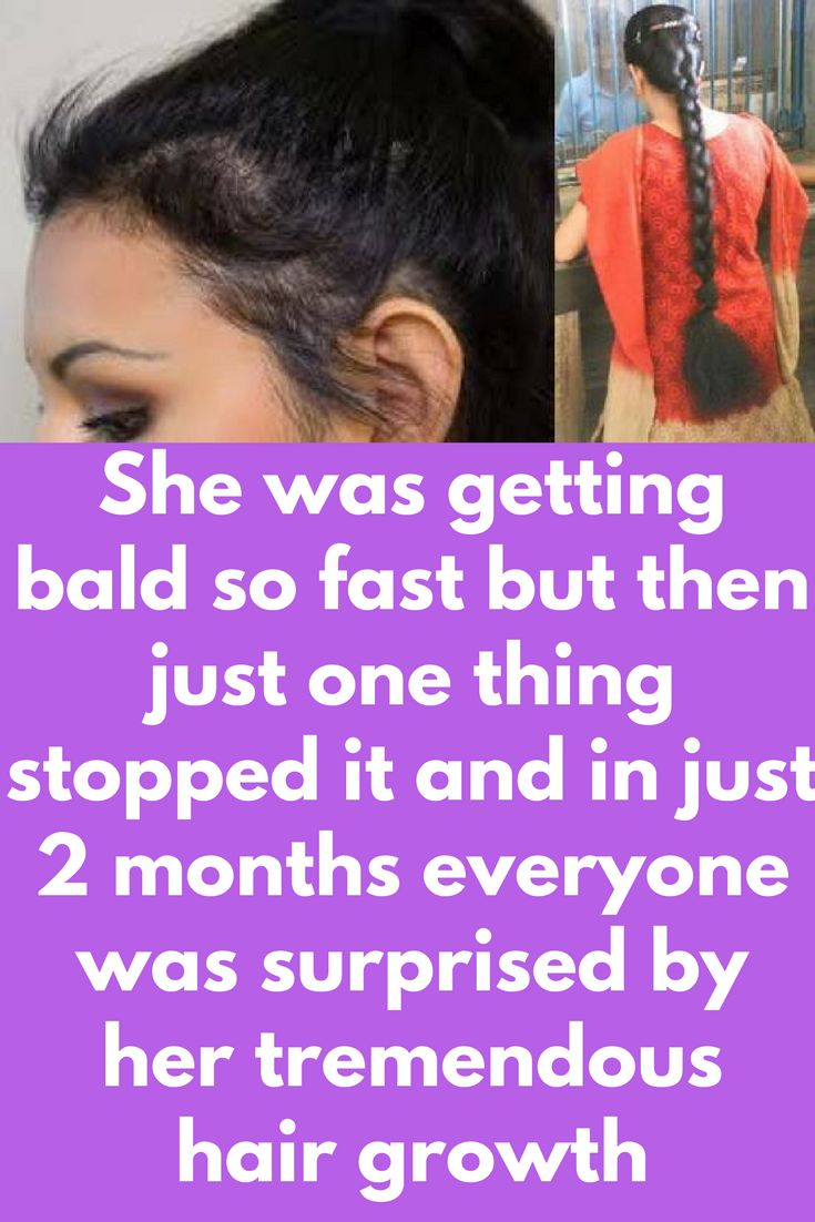 She was getting bald so fast but then just one thing stopped it and in just 2 months everyone was surprised by her tremendous hair growth Does same happening with you also that losing hair from one part very fast. If yes, then this post is for you. Today we will telly you some home remedies that are very effective to stop hair loss and also for new hair growth. 1. Onion Onion is a rich source of sulphur which helps …